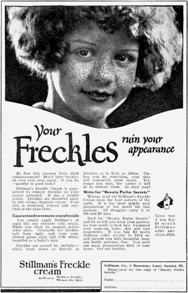 freckle-cream